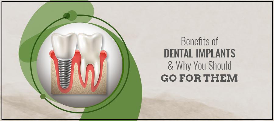 Dental implants in Pimpri Chinchwad